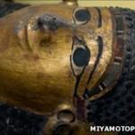 Diseased Mummies