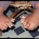 Akshat Saxena 34 Fingers Toes