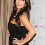 Kim Kardashian Psoriasis