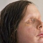 Charla Nash Chimp Victim Face Transplant