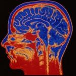 Brain Decline Age