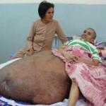 Man 90-kilo Tumour