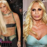 Donatella Versace Breast Implants