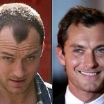 Jude Law Losing His Hair